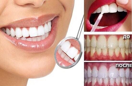 Как в домашних условиях отбелить зубы фото