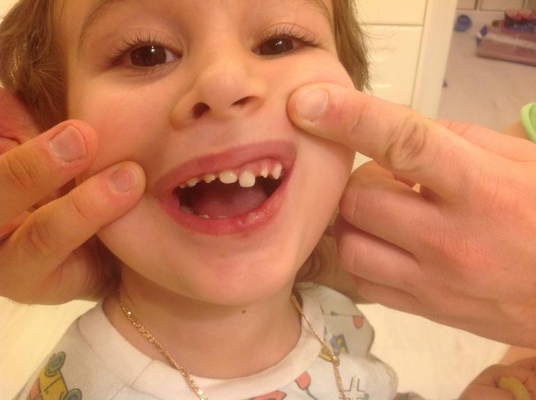 Ребенку 3 года выбил передние зубы