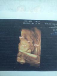 Фото узи на 38 неделе беременности
