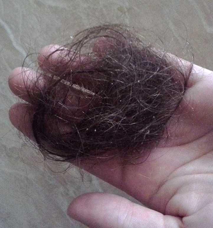 Усиление выпадения волос от шампуня