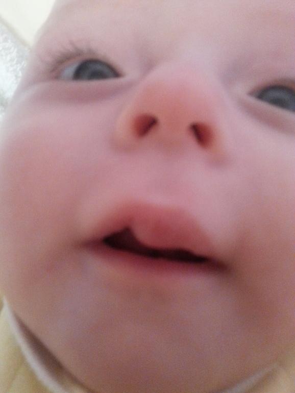 Гемангиомы на губе у новорожденного