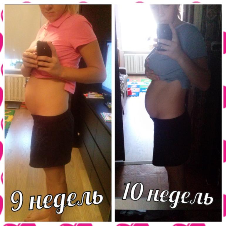 10 недель беременности живот фото