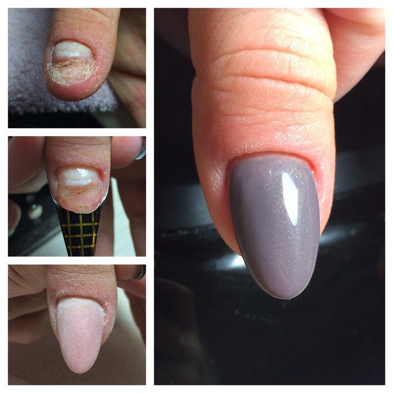 Как слезают ногти