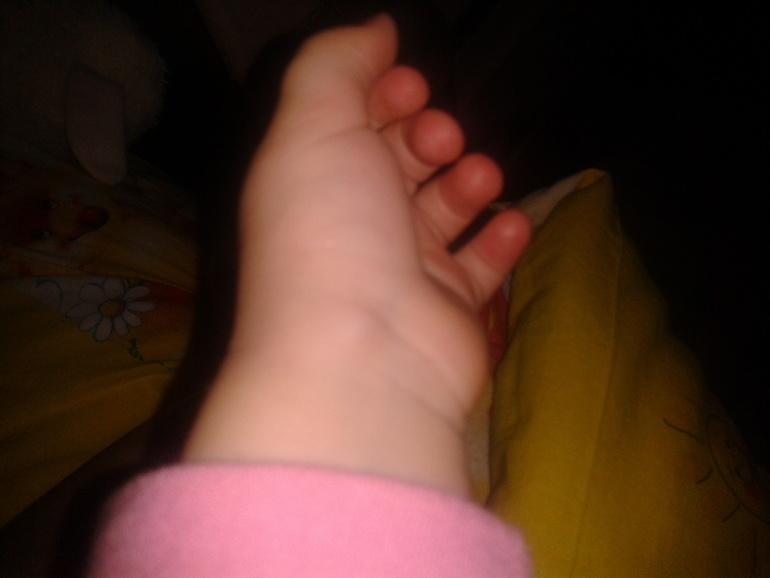 если шерсть уплотнение на руке у ребенка термобелье