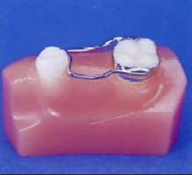 Сохранение места для зубов