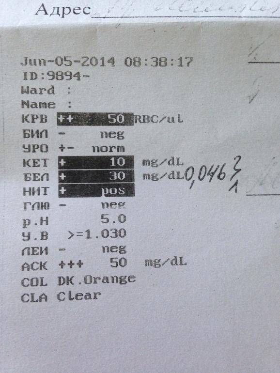 Анализ мочи расшифровка cla Справка о гастроскопии Щукино