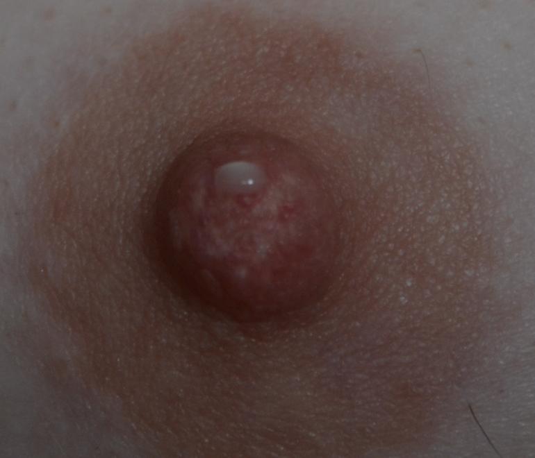 При беременности выделения из молочных желез