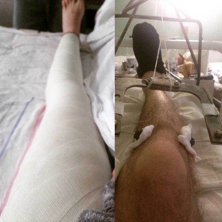 Посинела нога после перелома шейки бедра престарелые дома в могилевской области