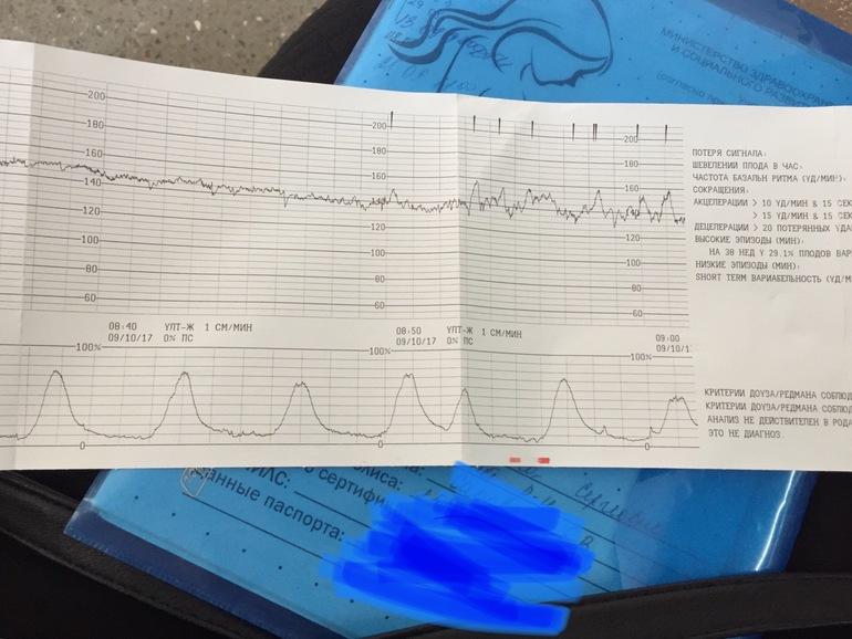 Что и как показывает, как определить настоящие схватки при помощи кардиотокографии, какие показатели исследуются?