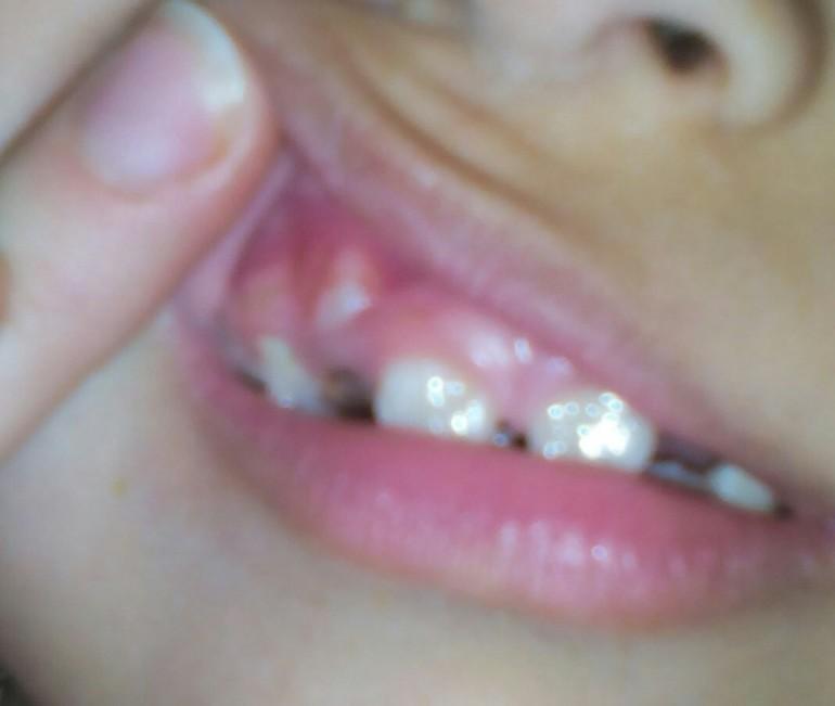 Что делать когда зубы растут вторым рядом