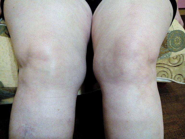 Болит колено распухло народная медицина лечебная физкультура при повреждении коленного сустава