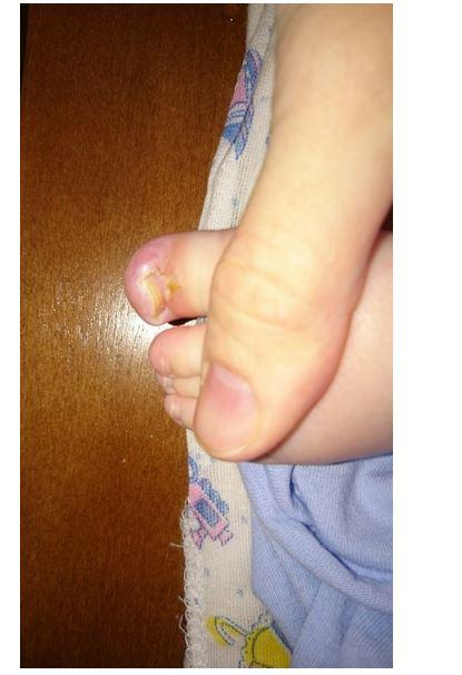 Как лечить больной ноготь при диабете